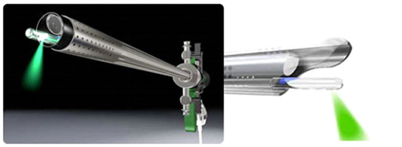 Система за лазерна резекция на простата