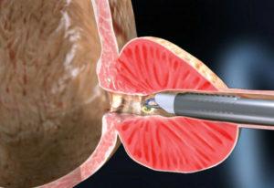 Плазмена вапоризация на простата